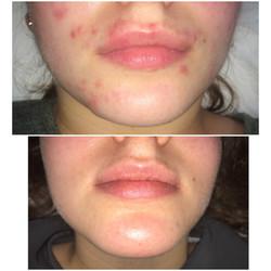 Spot Prone Skin 2