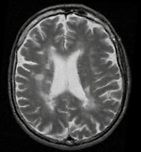 esclerose múltipla.png