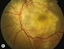 Sífilis retina.png