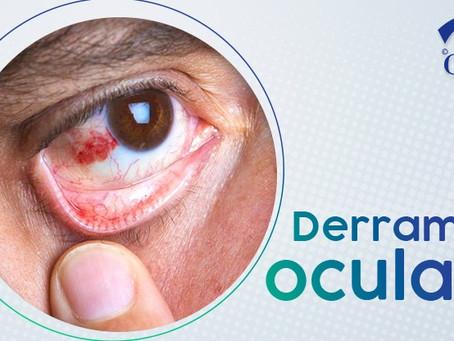 Derrame Ocular: causas e tratamento
