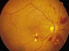 hiv aids retina.png