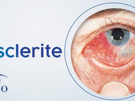Esclerite