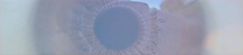 Laser para glaucoma Bauru.jpg