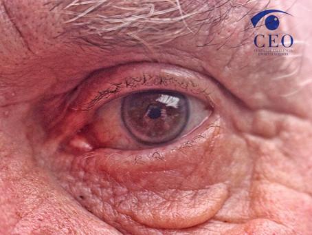 5 fatores que podem agravar o glaucoma