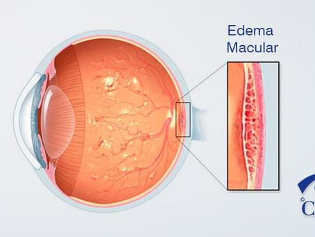 Edema Ocular