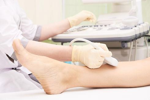Medical examination. Patients leg. Ultra