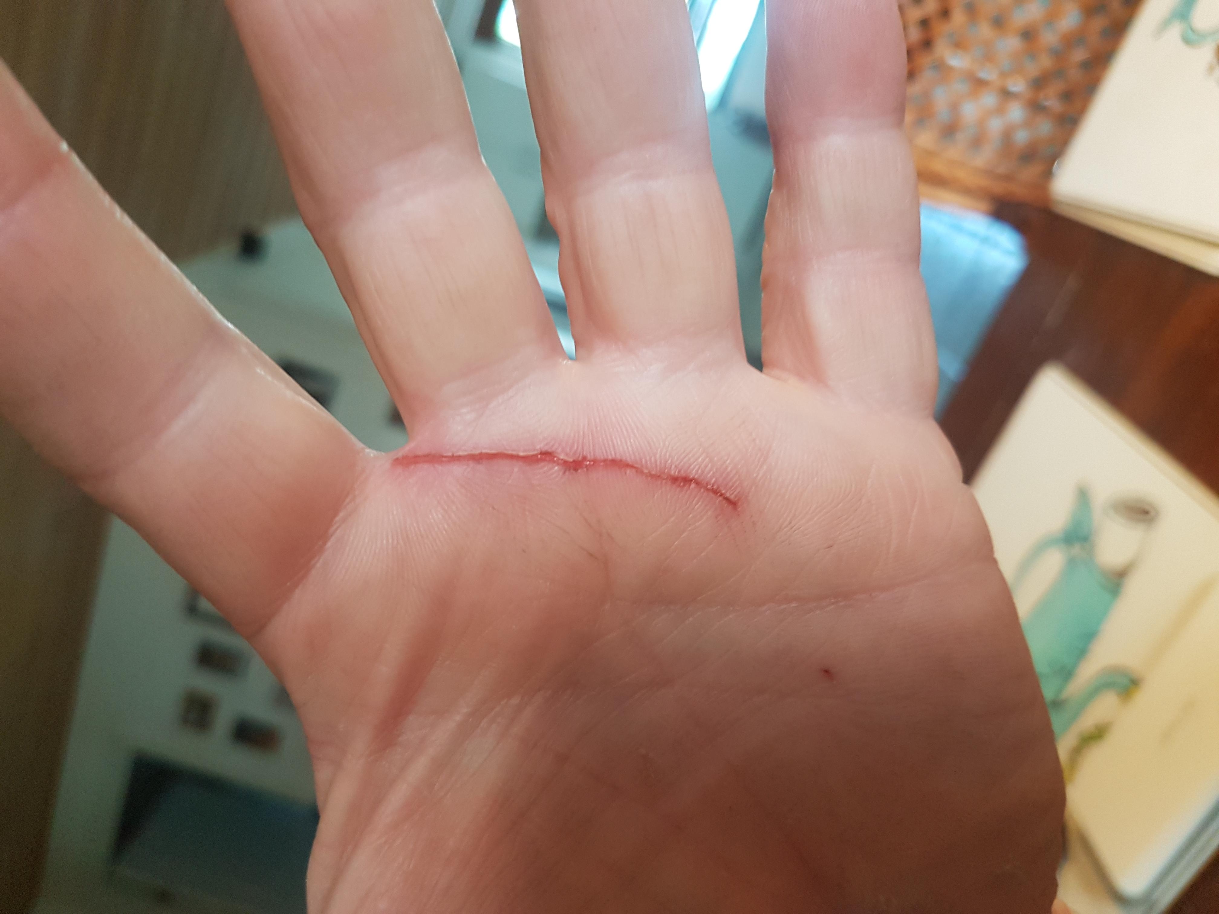Zip tie wound