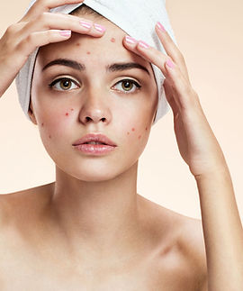 Trouble-With-Acne-1.jpg