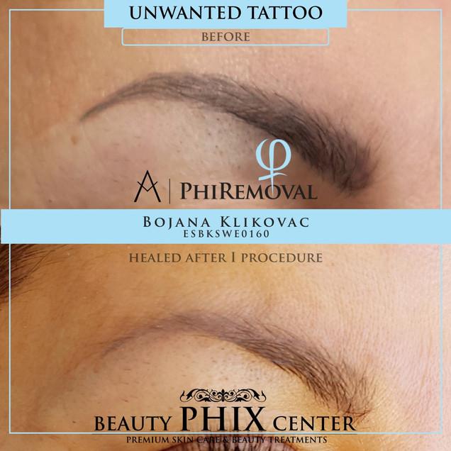 Tattoo removal med Phiremoval tehnique by certifierade estetiker och hudterapeut Bojana Klikovac.