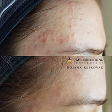PhiBright treatment for Acne Bojana Klikovac Master