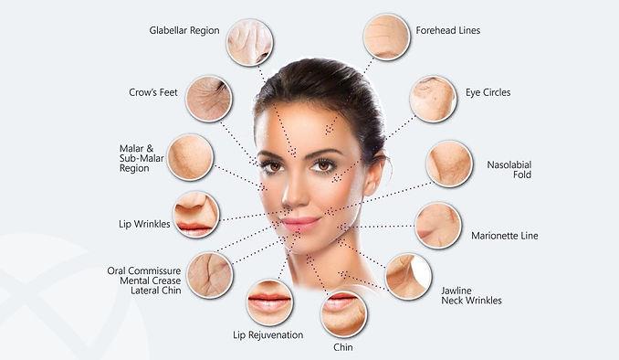 prp-tourmedical-cosmetic-treatment-kusad