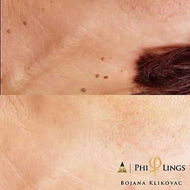 fibromas philing1.png