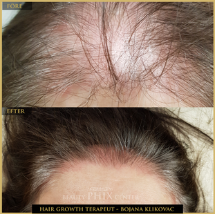 HAIR GROWTH BY BOJANA KLIKOVAC PHILINGS TECHNIQUE STOCKHOLM