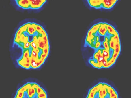 Lifesaving Stroke Treatments Now Offered to More People