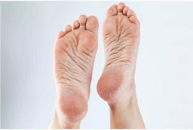Initial Foot Care Assessment