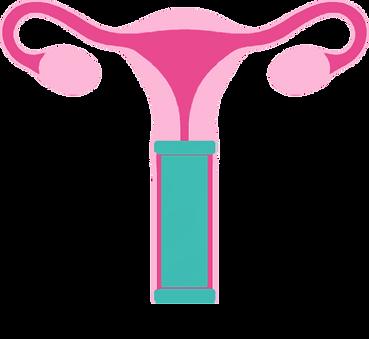 Livmoder kvinnlig kondom.png