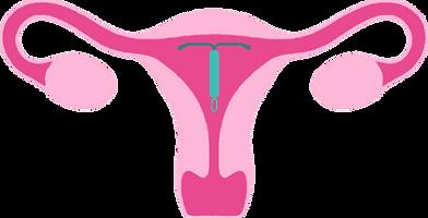 Hormonspiral livmoder