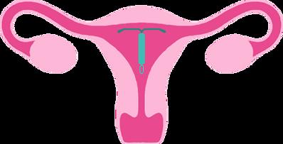 IUD-livmoder.png