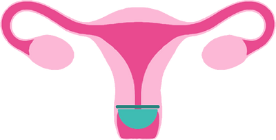 pessar-livmoder.png