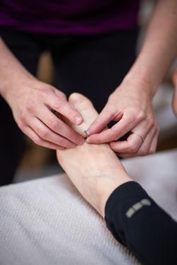 Japanse acupunctuur