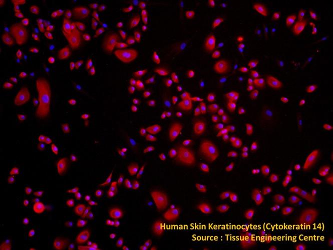 Human Skin Keratinocyte