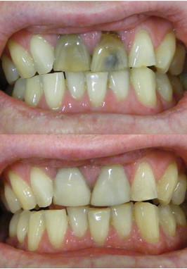 Dark dead teeth