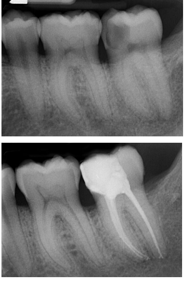 Root canal treatment before and after