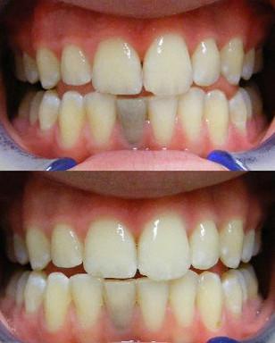 Internal bleaching of dark tooth