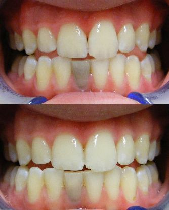Internal dental bleaching