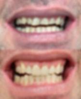 Dental Erosion Repaired with veneers