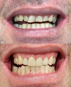 Dental Erosion Repaired with veneers