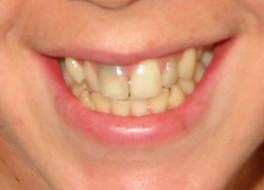 Dental Bleaching - Internal