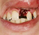 Adult tooth/ teeth knocked out