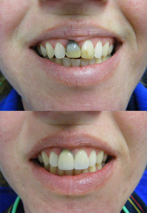Ceramic crown over dark tooth