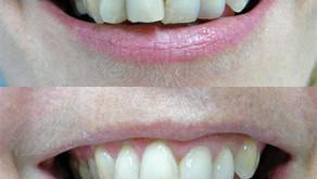 Composite Resin Cosmetic Fillings and Veneers