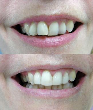 No braces. Teeth cut for veneers.