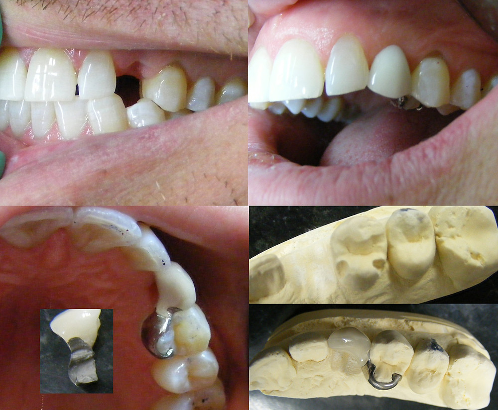 Maryland Bridge available at Bytes Dental -  Dentists with a gentle touch