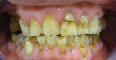 Dental enamel erosion from lemon acid