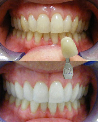 Dental whitening before and after