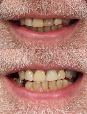 Dark tooth composite resin