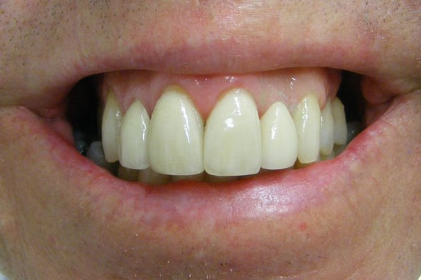 Dental crowns and veneers Ballina