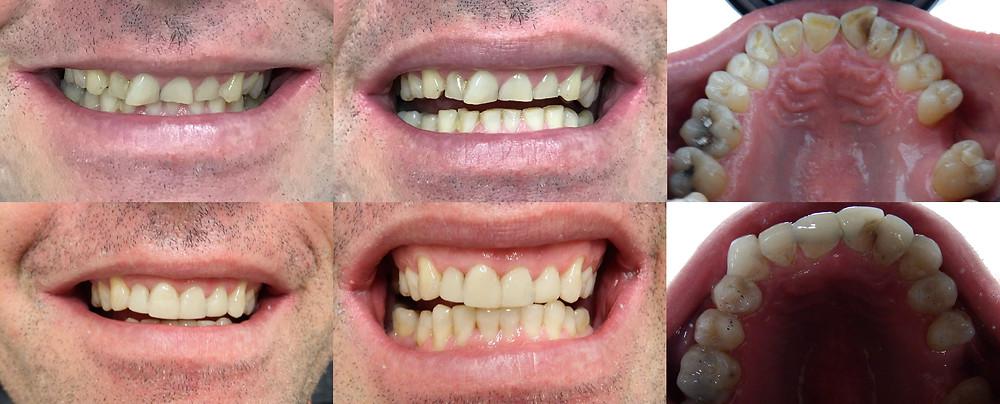 Worn down teeth repaired at dentist