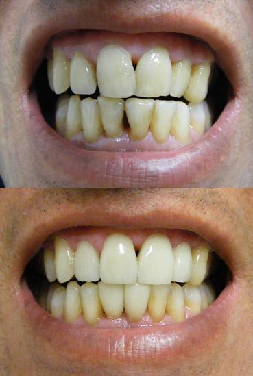 Porcelain veneers on periodontal diseased teeth