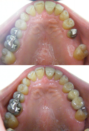 Bridge for molar