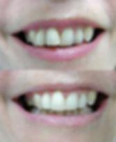 Composite resin veneers instead of braces