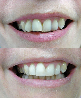 Composite resin veneers instead of braces