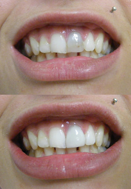 Veneer over dark tooth