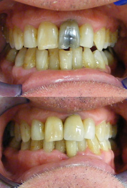Cracked tooth crown