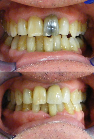 Crowned tooth before and after