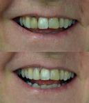 Dark tooth veneered